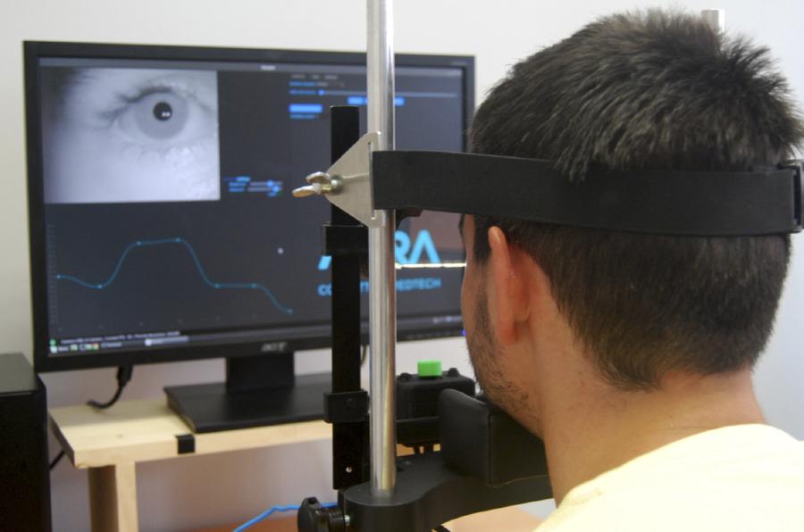 <p>Oscann, de Aura Robotix, permite detectar desórdenes neurológicos. </p>