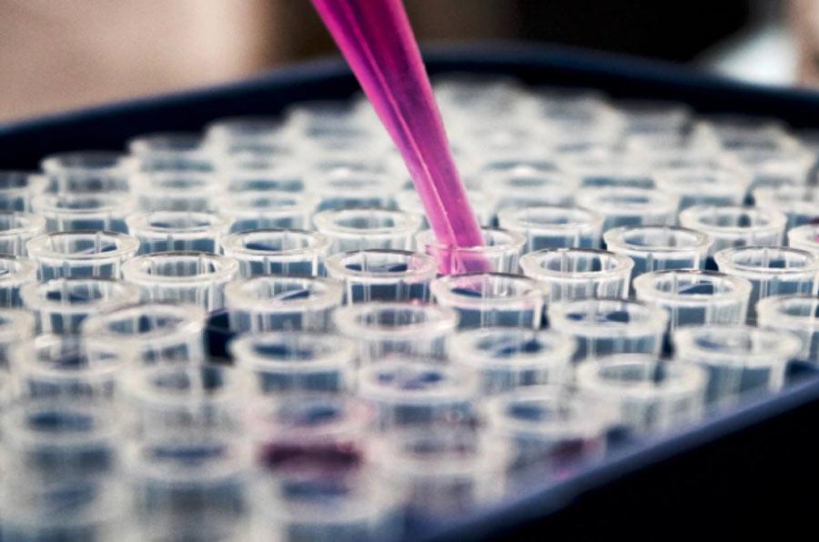 AXA Research Fund financia ocho proyectos que mejoran las salud de la mujer